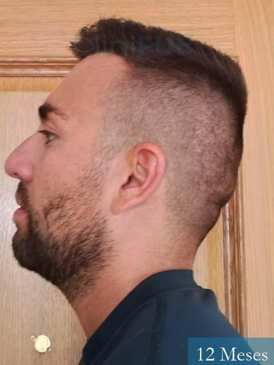 Carlos 30 Madrid injerto de pelo 12 meses 5
