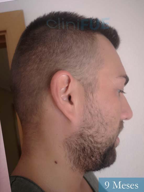 Carlos 30 Madrid injerto de pelo 12 meses 2