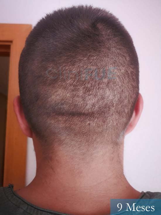Carlos 30 Madrid injerto de pelo 12 meses 4