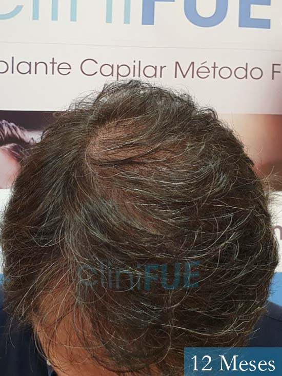 Cristobal 46 Bilbao injerto capilar turquia 12 meses desde trasplante de pelo
