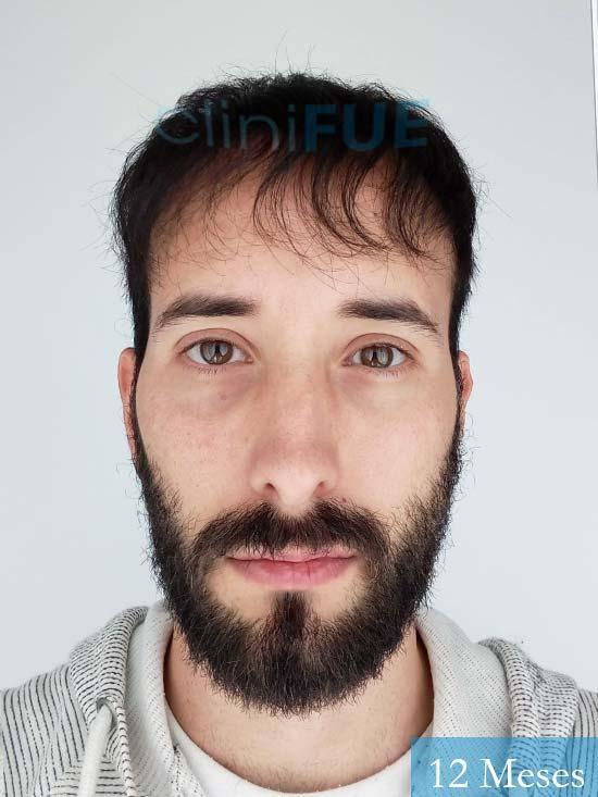 Jonathan 31 años Las Palmas trasplante capilar turquia 12 meses 2