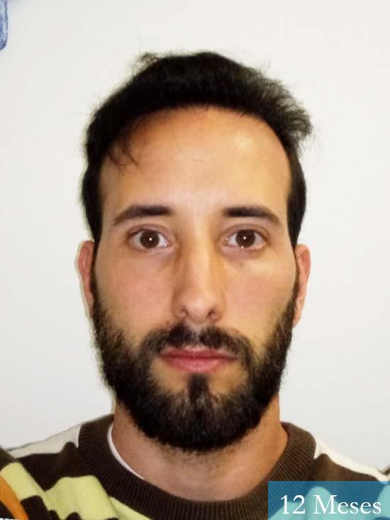 Jonathan 31 años Las Palmas trasplante capilar turquia 12 meses