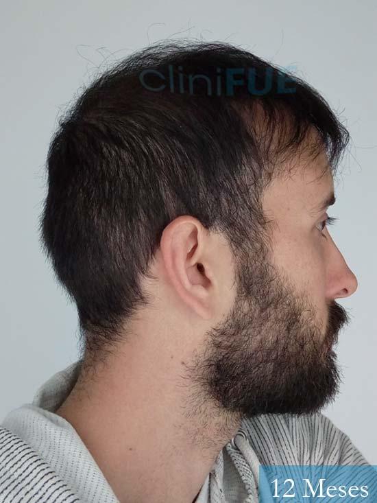 Jonathan 31 años Las Palmas trasplante capilar turquia 12 meses 4