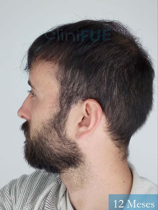 Jonathan 31 años Las Palmas trasplante capilar turquia 12 meses 5