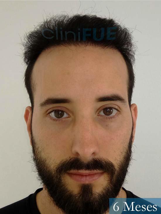 Jonathan 31 años Las Palmas trasplante capilar turquia 3 meses