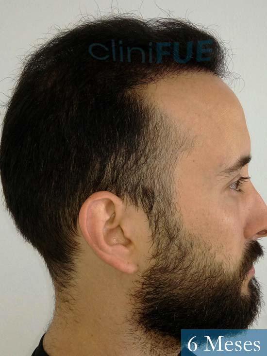 Jonathan 31 años Las Palmas trasplante capilar turquia 3 meses 3