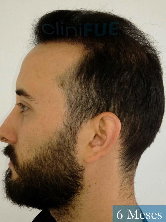 Jonathan 31 años Las Palmas trasplante capilar turquia 3 meses 4