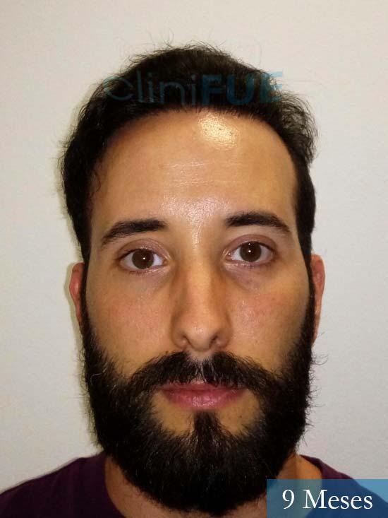 Jonathan 31 años Las Palmas trasplante capilar turquia 9 meses