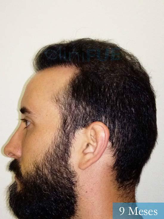 Jonathan 31 años Las Palmas trasplante capilar turquia 9 meses 3