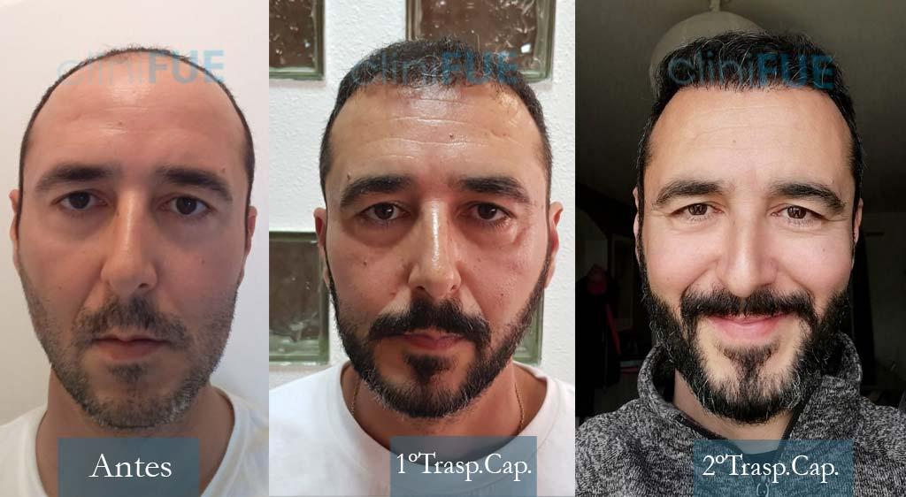 Trasplante capilar de Jordi Lav – Youtuber con cliniFUE