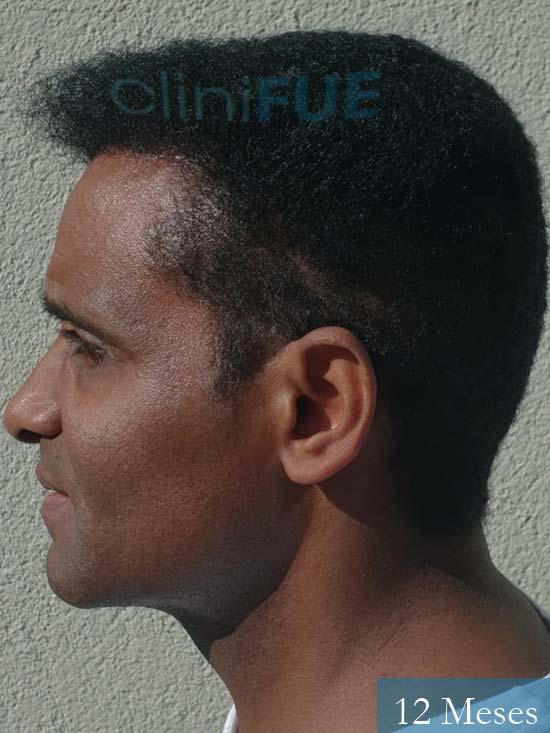 Juan Manuel injerto capilar 2 operaciones 12 meses 4