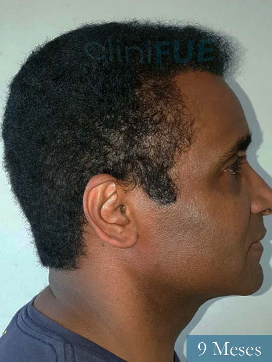 Juan Manuel injerto capilar 2 operaciones 9 meses 3