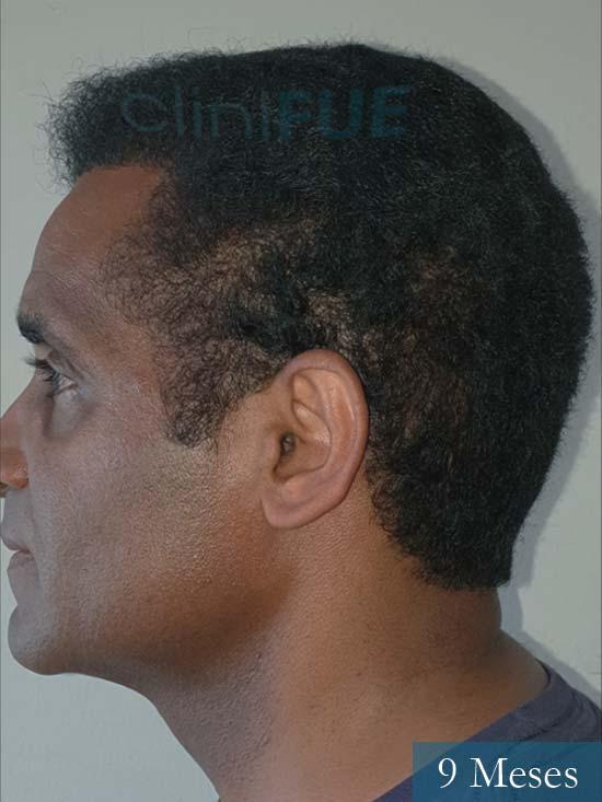 Juan Manuel injerto capilar 2 operaciones 9 meses 4