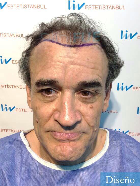 Julen 56 Burgos injerto de pelo dia operacion diseno 1