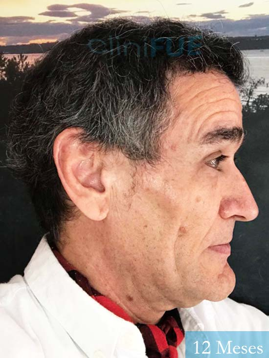 Julen 56 Burgos trasplante de pelo Turquía 12 Meses 5
