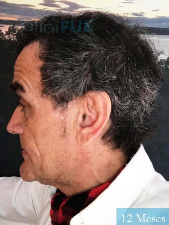 Julen 56 Burgos trasplante de pelo Turquía 12 Meses 2