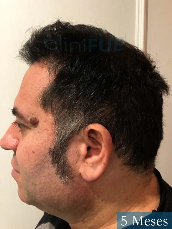 Ricardo injerto de pelo dia operacion 3 meses 4