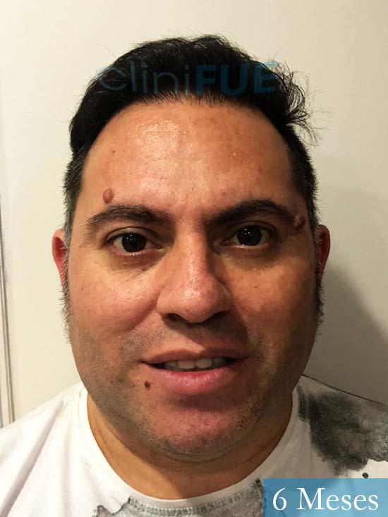 Ricardo injerto de pelo dia operacion 3 meses