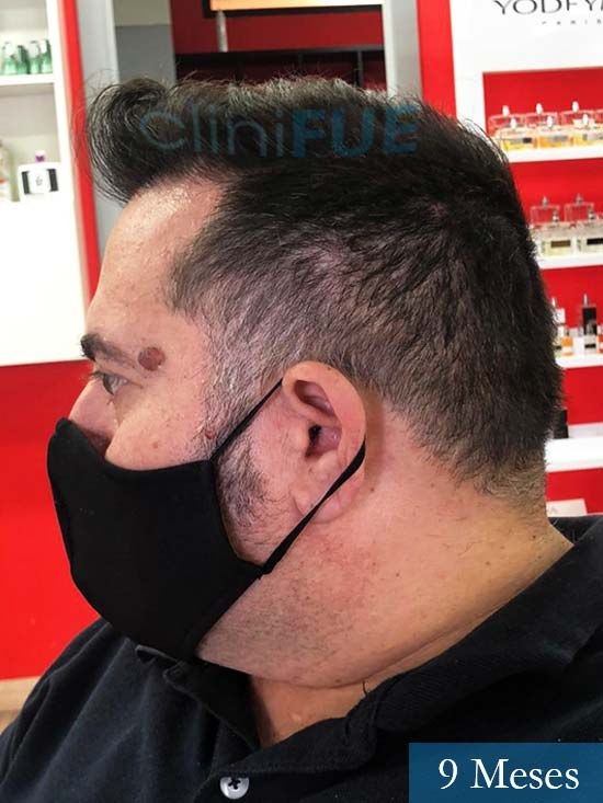 Ricardo injerto de pelo dia operacion 3 meses 5