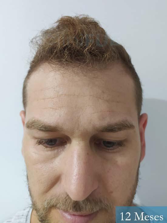 Victor 32años trasplante capilar turquia 12 meses
