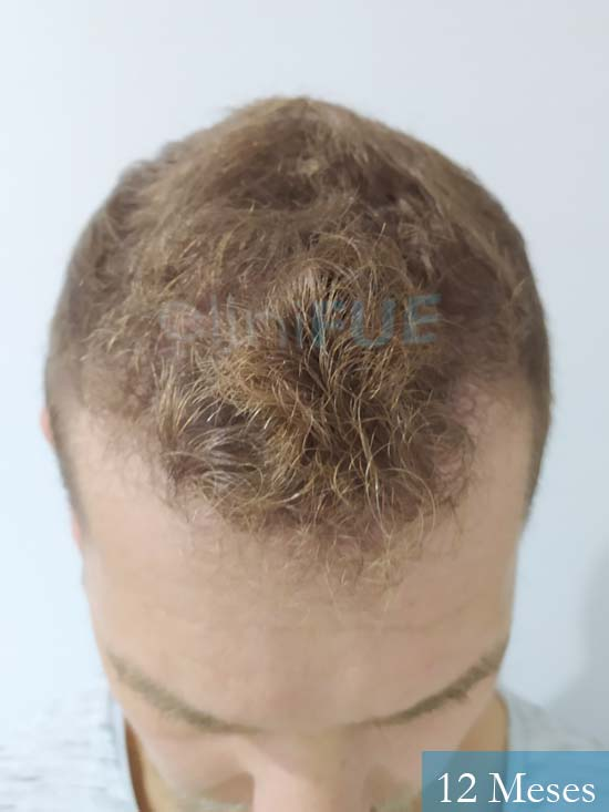 Victor 32 años trasplante capilar turquia 12 meses