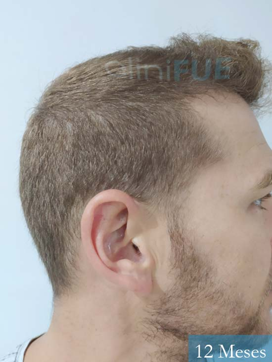 Victor 32 años trasplante capilar turquia 12 meses v