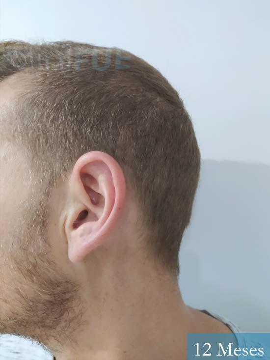 Victor 32 años trasplante capilar turquia 12 meses 3