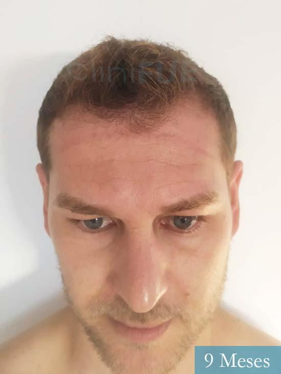 Victor 32 años trasplante capilar turquia 9 meses