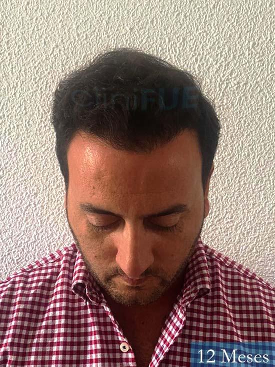 Álvaro 36 Huelva injerto de pelo 12 meses 2