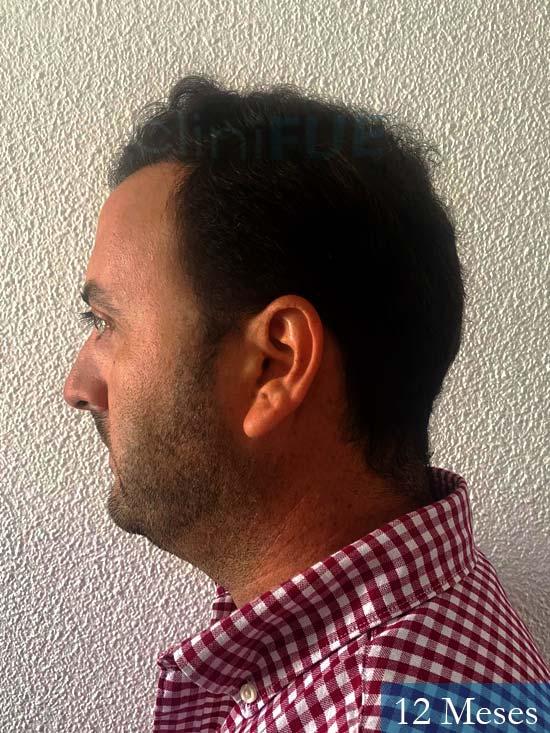 Álvaro 36 Huelva injerto de pelo 12 meses 5