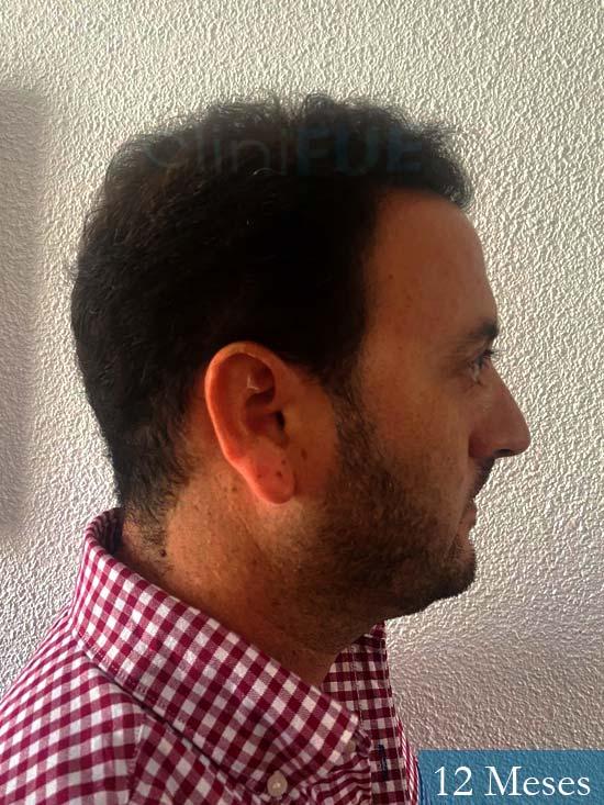 Álvaro 36 Huelva injerto de pelo 12 meses 3