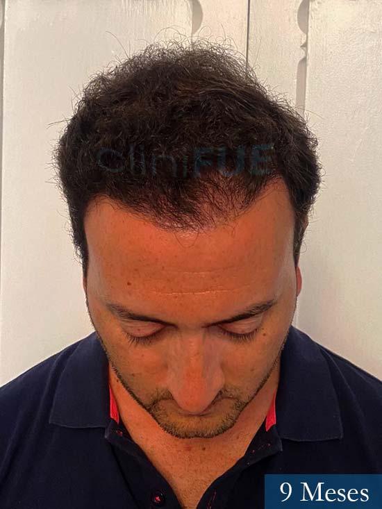 Álvaro 36 Huelva injerto de pelo 9 meses 4