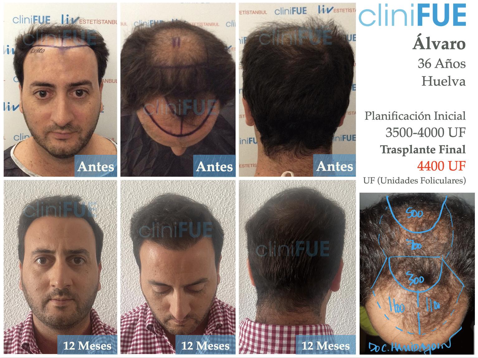 Alvaro-36-Huelva-trasplante-capilar-anyes-despues-3