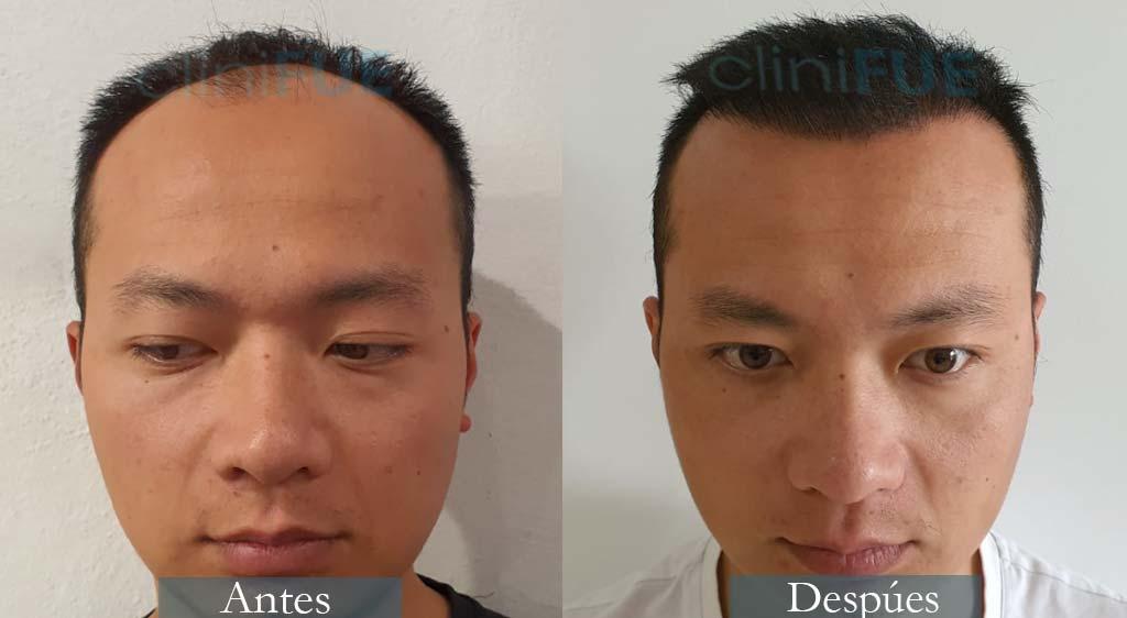 Injerto capilar de Dezhong 31 Años de Madrid con cliniFUE