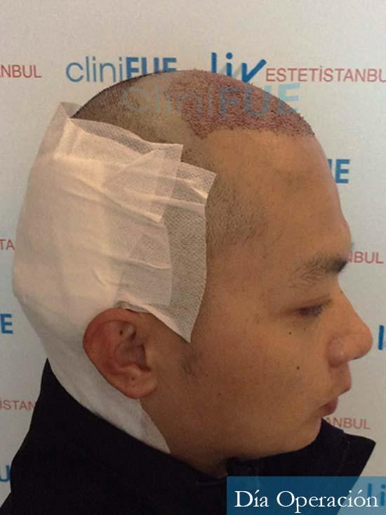 Dezhong 31 Madrid injerto de pelo dia operacion 3
