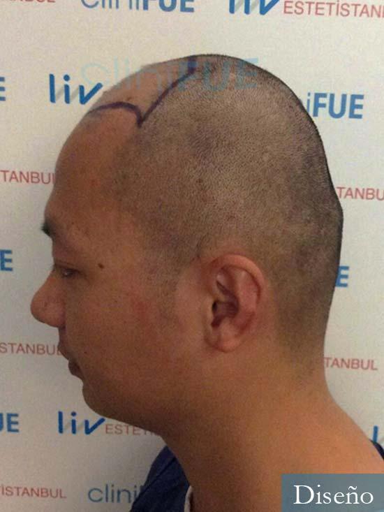 Dezhong 31 Madrid injerto de pelo dia operacion diseno 5