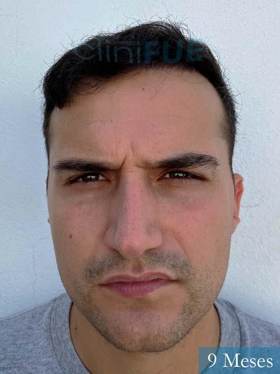 Pepe 25 años Valencia trasplante capilar 9 meses 1