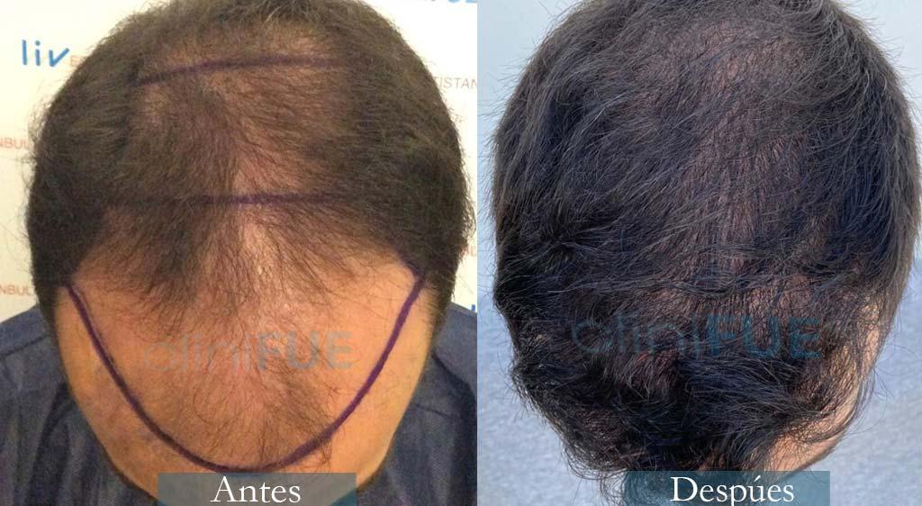 Pepe 25 años Valencia trasplante capilar