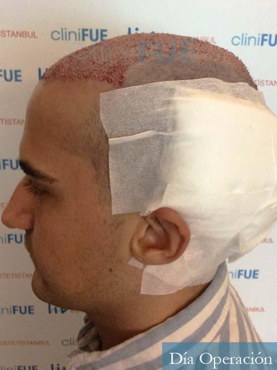 Pepe 25 años Valencia trasplante capilar dia operacion 5