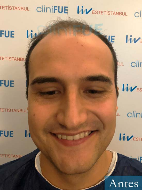 Pepe 25 años Valencia trasplante capilar dia operacion 1