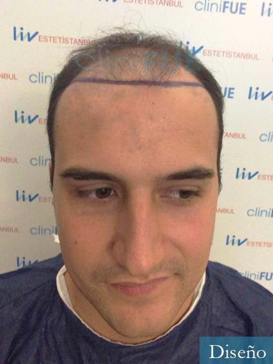 Pepe 25 años Valencia trasplante capilar dia operacion diseno