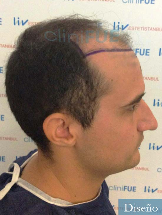 Pepe 25 años Valencia trasplante capilar dia operacion diseno 3