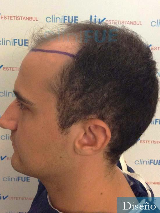 Pepe 25 años Valencia trasplante capilar dia operacion diseno 4