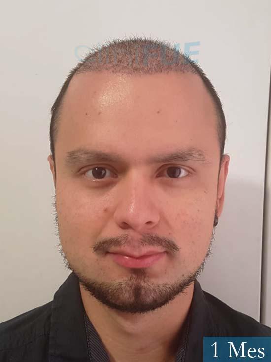 Sebastian 24 Barcelona trasplante turquia 1 mes
