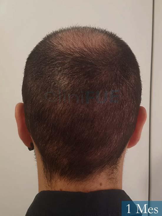 Sebastian 24 Barcelona trasplante turquia 1 mes 5