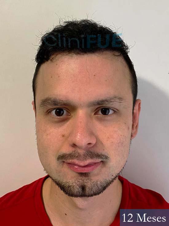 Sebastian 24 Barcelona trasplante turquia 12 meses 1