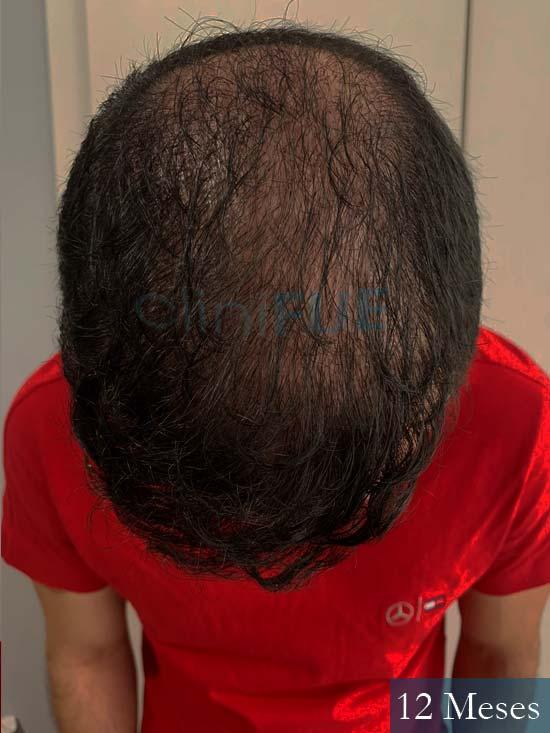 Sebastian 24 Barcelona trasplante turquia 12 meses 2