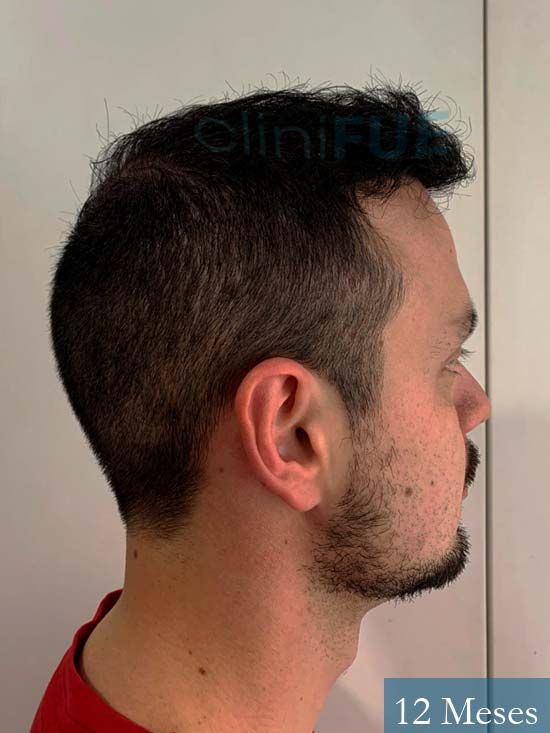 Sebastian 24 Barcelona trasplante turquia 12 meses 3