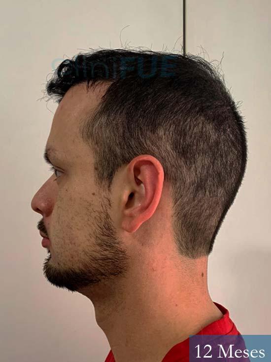 Sebastian 24 Barcelona trasplante turquia 12 meses 4