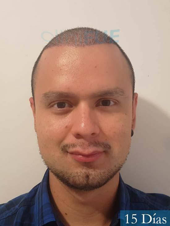 Sebastian 24 Barcelona trasplante turquia 15 dias 1